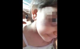 5 yaşındaki küçük kıza babası ve sevgilisinden akılalmaz işkence!