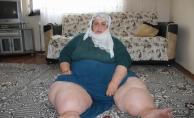 Fil hastalığına yakalanan kadın yardım bekliyor