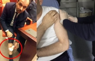CHP Milletvekili, AK Partili Balta'yı bacağından...