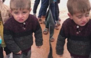 Görüntüleri yürek burkan çocuğa yardım eli