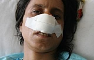 Karısının cinsel organını dağladı