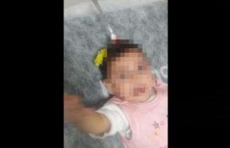 Şoke eden görüntü! 8 aylık bebeğin kafasına saplandı!