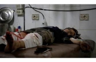 Esad rejimi çocukları vurdu!