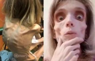Anoreksiya hastası kadın görenleri şoke ediyor