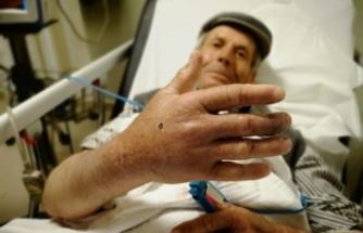 Yeşillik alanda elini ısırdı! 12 saat hastanede kalacak