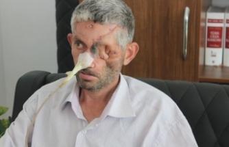 'Dişini çektirdi, gözünü kaybetti' iddiası yalan çıktı!