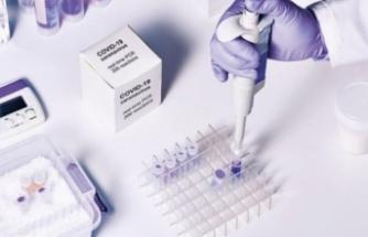 Koronavirüse karşı evde 1 dolara test