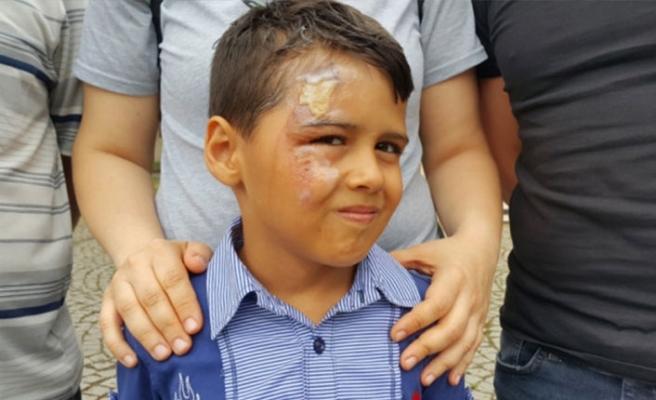 Bursa'da küçük çocuğun hayatını kabusa çeviren olay!