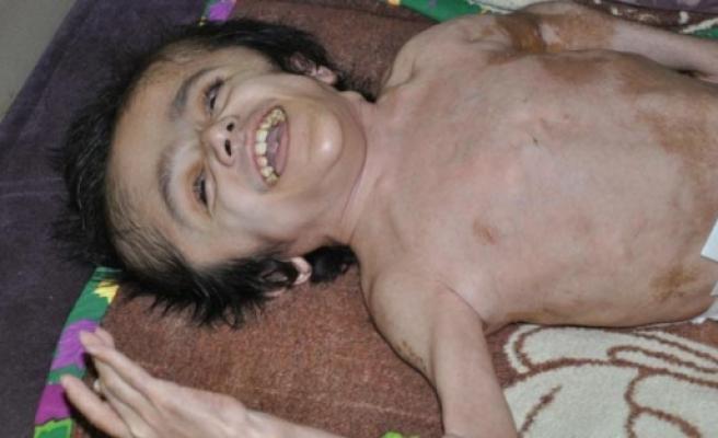 Hidrosefali hastasına evde bakım şoku