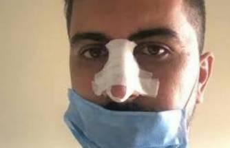 Sosyal mesafe uyarısı yapan hemşirenin burnunu kırdılar