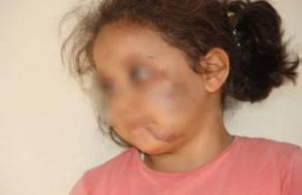 Baba vahşeti! 3 çocuğuna iki gün boyunca işkence yaptı