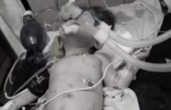 Bir yaşındaki 'Hayat' bebek işkence sonucu yaşama veda etti